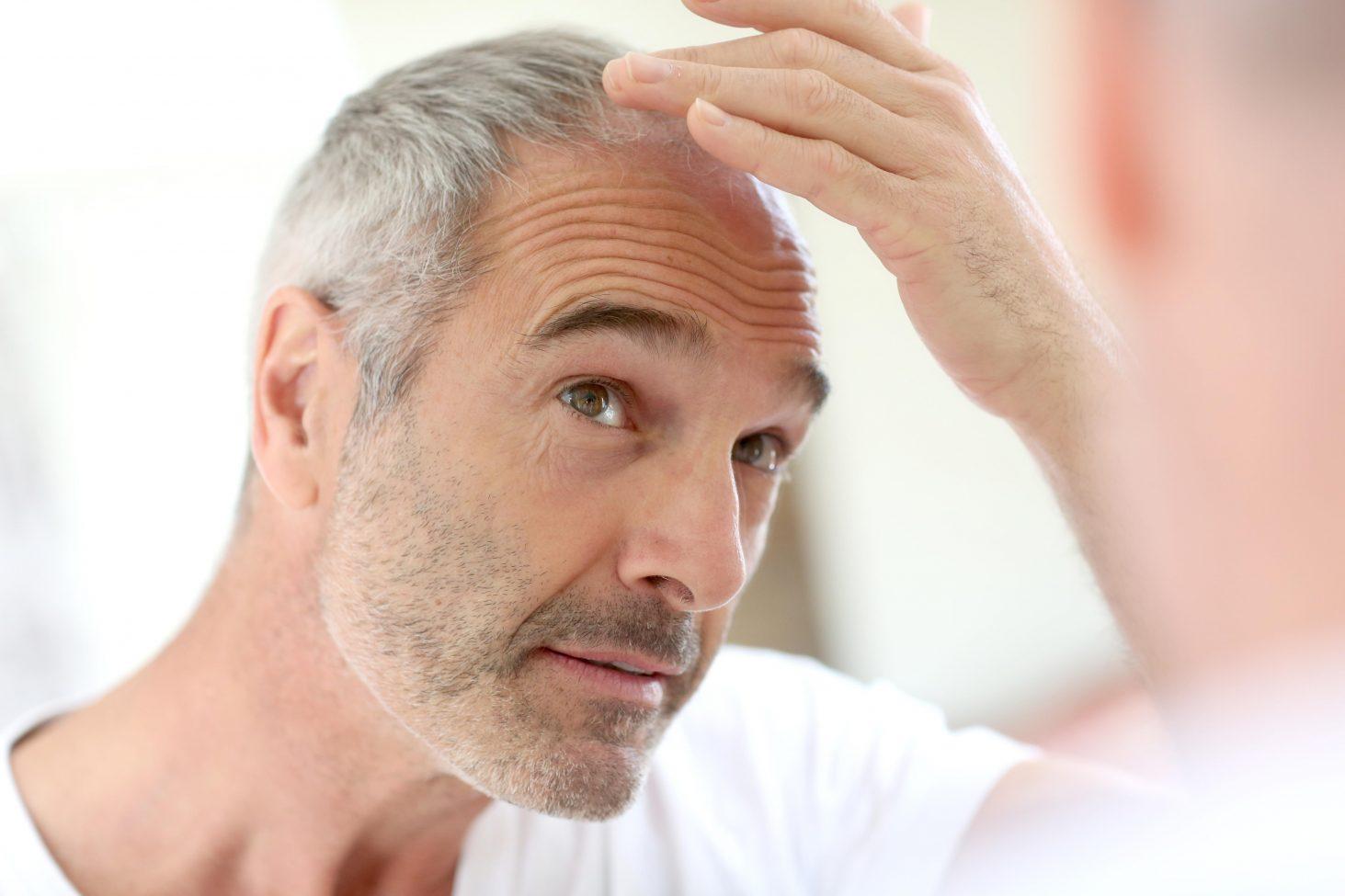Greffe de cheveux, informations utiles